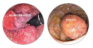 hemorrhoids and polyps