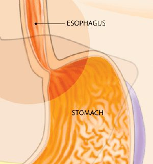 What is Esophageal Dilation